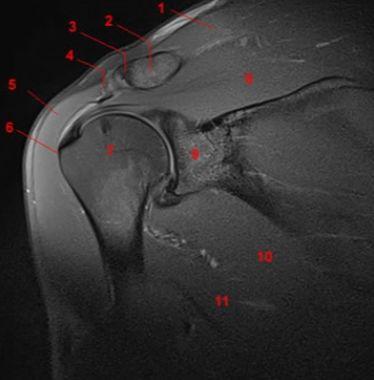 тамография плечевого сустава в спб